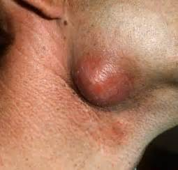 epididymal cyst treatment naturally picture 2