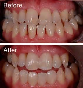 bonding on teeth picture 7