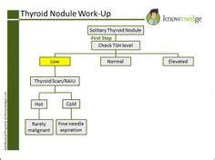 celiac disease and thyroid nodule picture 17
