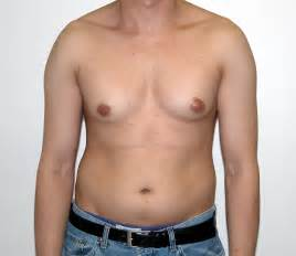 transgender breast growth pictures picture 1