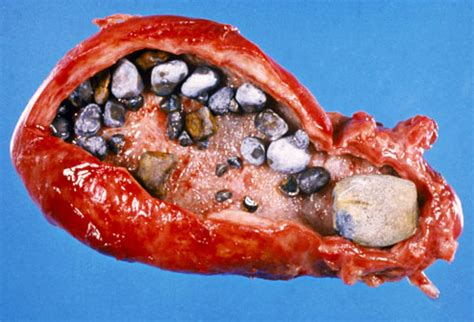 what dose a bad gallbladder look what does picture 10