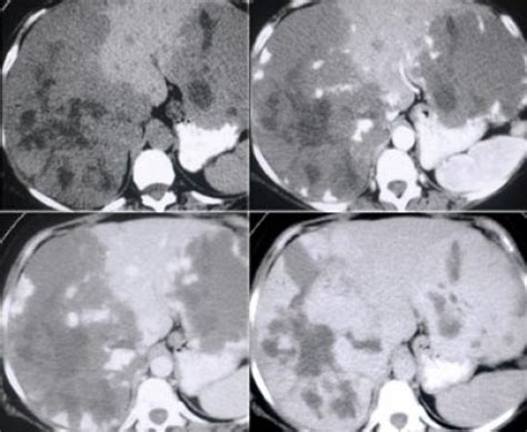 atypical liver hemangioma picture 7