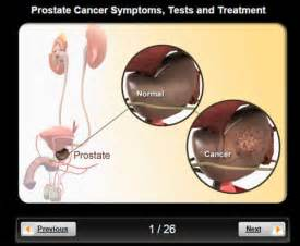 Prostate cancer hip pain description picture 2