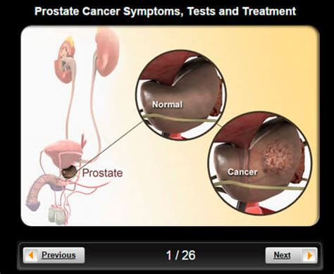 How to find your prostate picture 3