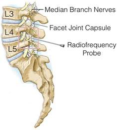 facet joint nerve ablation picture 3