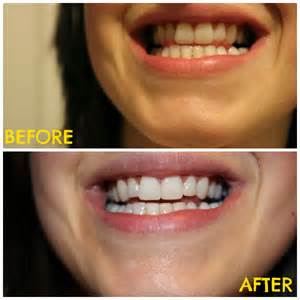 baking soda white teeth picture 6