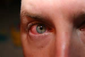 Bacterial eye infection picture 2