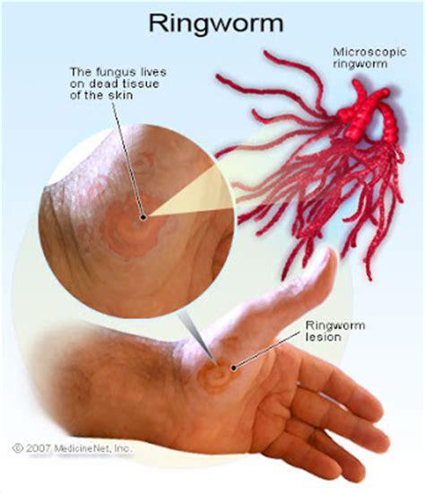 antif dermatophyte herbal picture 13