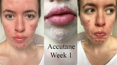accutane reviews picture 2