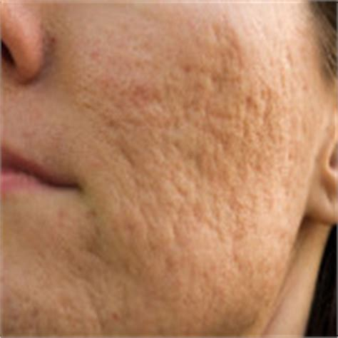 acne spots and kirm ka name picture 12