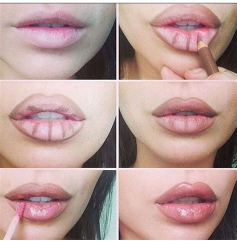 Lip injections picture 6