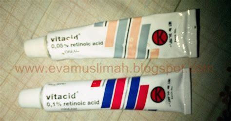review vitacid boby fahlevi picture 2