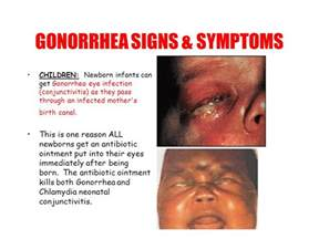 gonoriah symptoms to a women picture 15