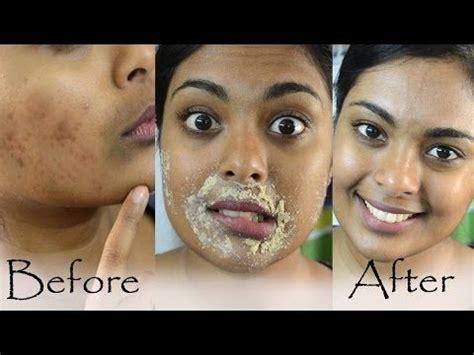 how to darken scar picture 9