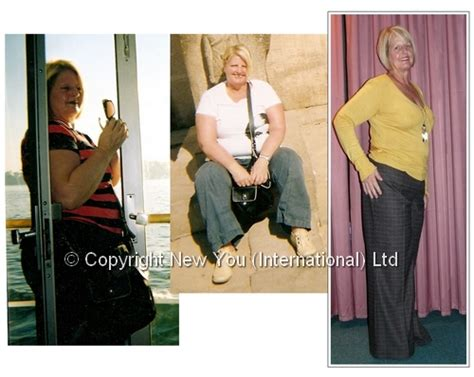 canada weight loss ballon doctors picture 1