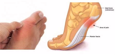arthritis and thyroid disease picture 7