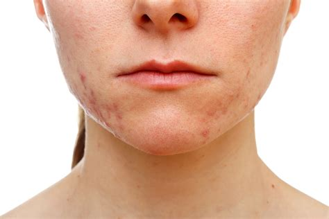 adult cystic acne picture 9