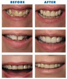 childrens teeth and veneers picture 2