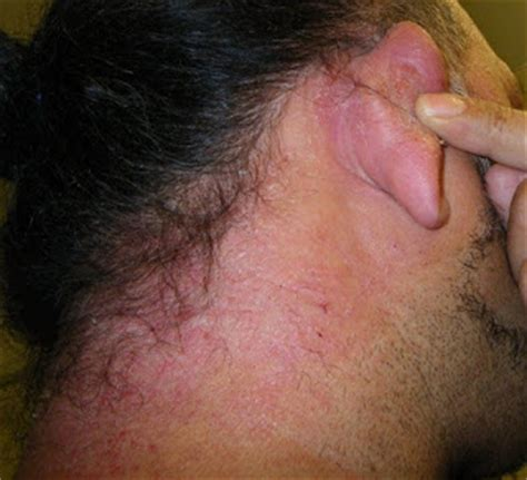allergic reactions hair dye picture 6