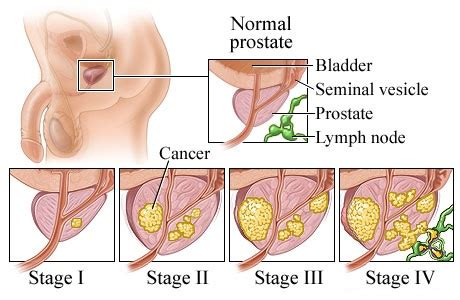 can i get dr sperling's prostate mri in picture 10