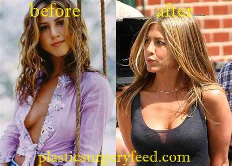 anniston breast enlargement picture 13