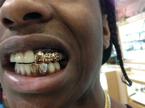 gold teeth grilles picture 5