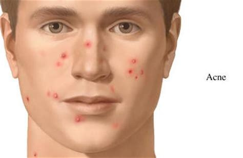 at what age does acne start picture 4