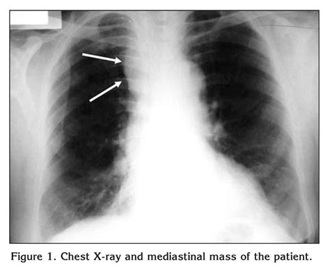 cancer icd 9 and drg codes picture 4
