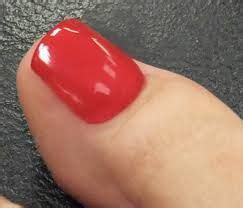 pictures ol toe fungus picture 6