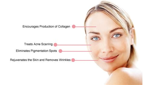 skin needling clinics in ca picture 1