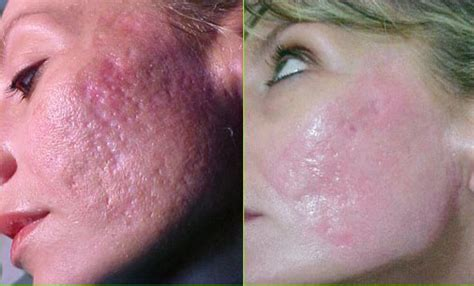 deep lazer surgery for acne scars picture 3
