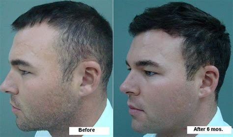 male testosterone therapy and hair loss picture 6