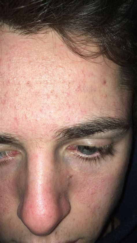 5 days late and bad acne picture 10