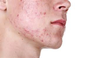 acne female picture 1