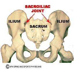 s.i. joint dysfunction. picture 3