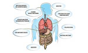 colon cleanse antidote for opioids picture 3