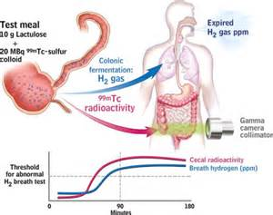 small intestine bacterial overgrowth breath test picture 13