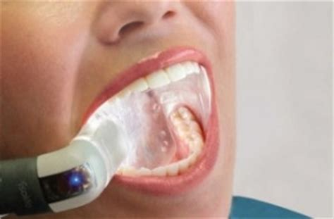 fort worth teeth whitening picture 17