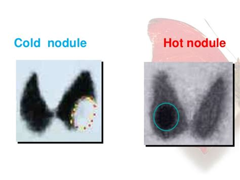 cold thyroid nodules picture 1