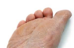 skin fingus from raw en picture 3