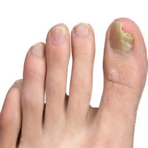 how to get rid of nail fungus picture 5
