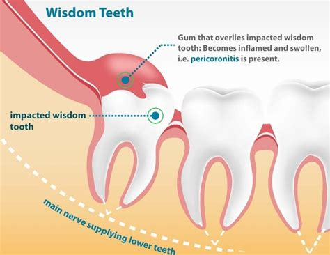 what teeth are your wisdom teeth picture 9
