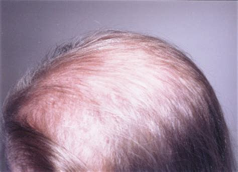 hair loss 2020 picture 13