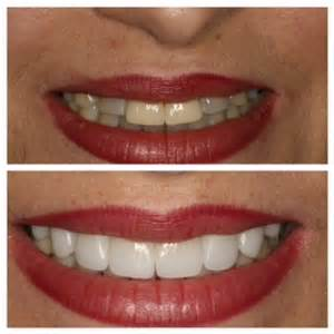 san francisco tooth whiten picture 1