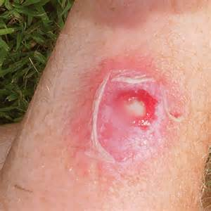 skin infections picture 9