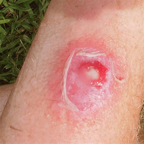 how to get rid of a skin bacterial infection picture 1