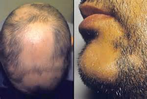 hair loss emedicine picture 7