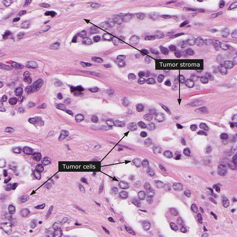 adenocarcinoma survival rate prostate picture 6