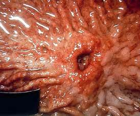 diagnosis of gastrointestinal ulcers picture 19