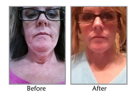 weight loss surgery and utah picture 1